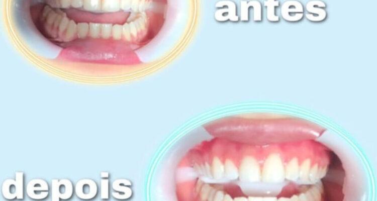 Mês do clareamento dental